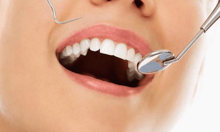 Язвы во рту (афты): симптомы, причины и лечение