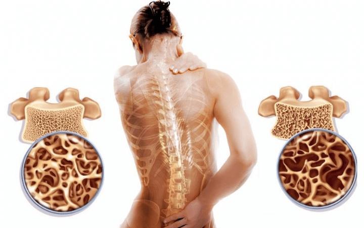 Остеопороз: симптомы, причины и лечение