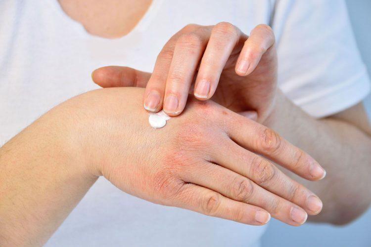 Ксероз кожи лечение