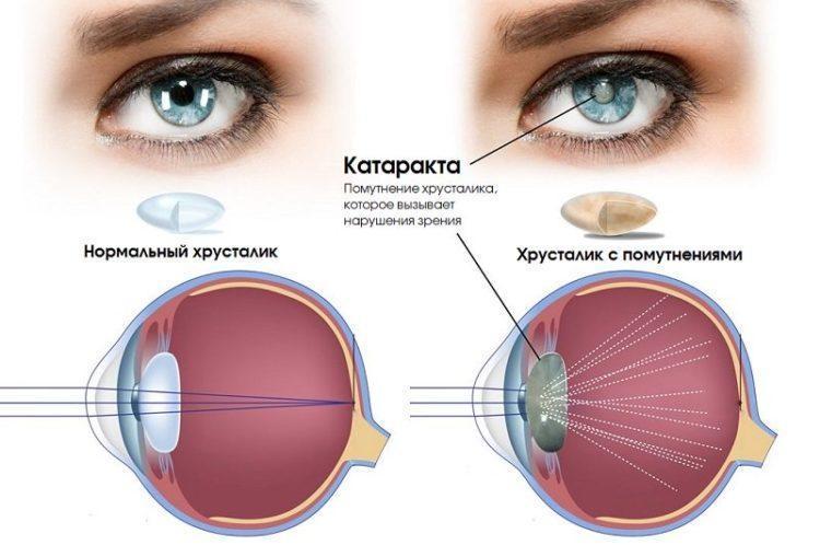 катаракта в разрезе