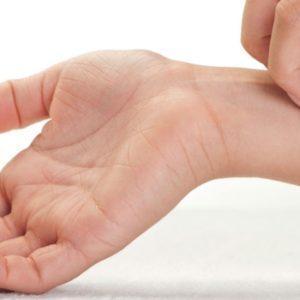 Экзема: симптомы, причины и лечение