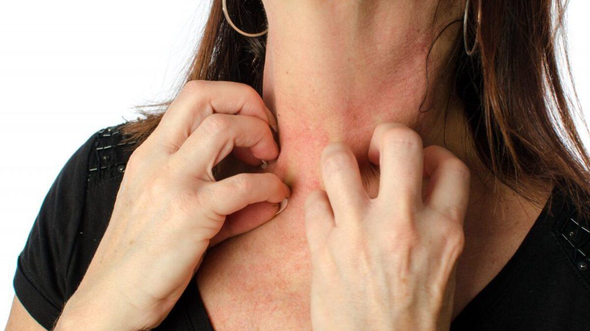 Что такое дерматит?
