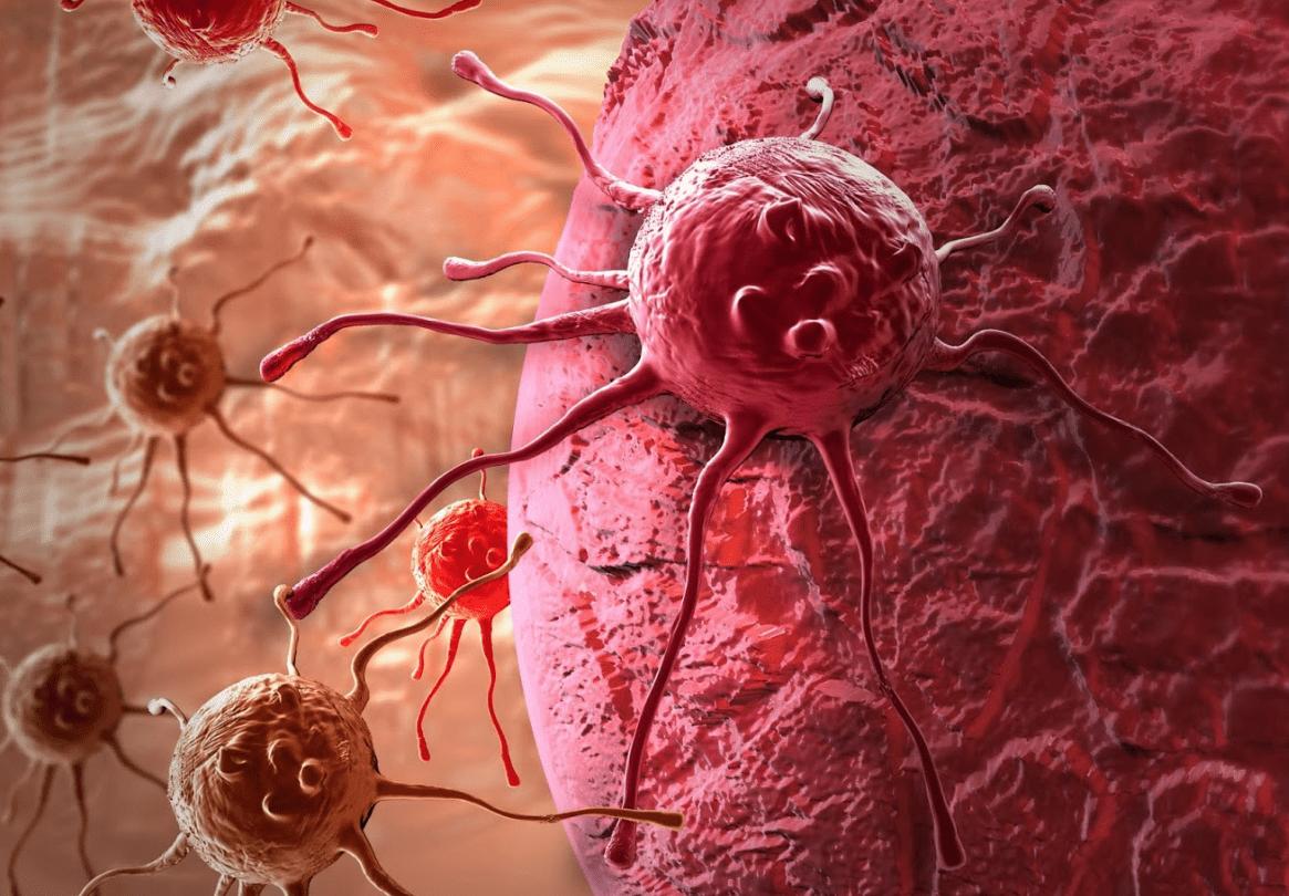 Рак: причины, симптомы и лечение