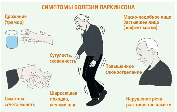 Симптомы Болезни Паркинсона