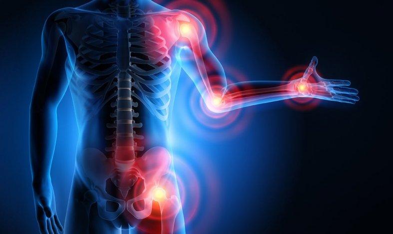 Артрит: причины, симптомы и лечение