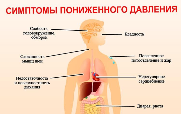 Низкое кровяное давление (гипотония)