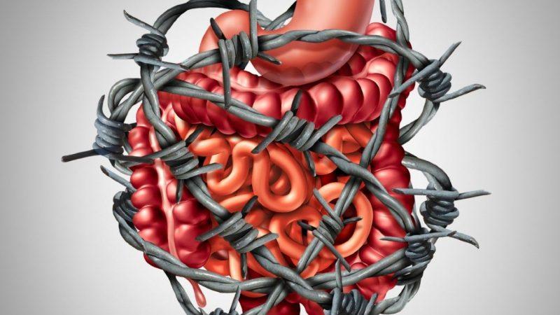Синдром раздраженного кишечника: симптомы, причины и лечение