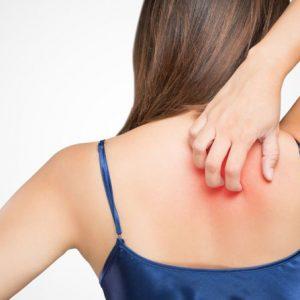 Причины возникновения псориаза, симптомы и варианты лечения